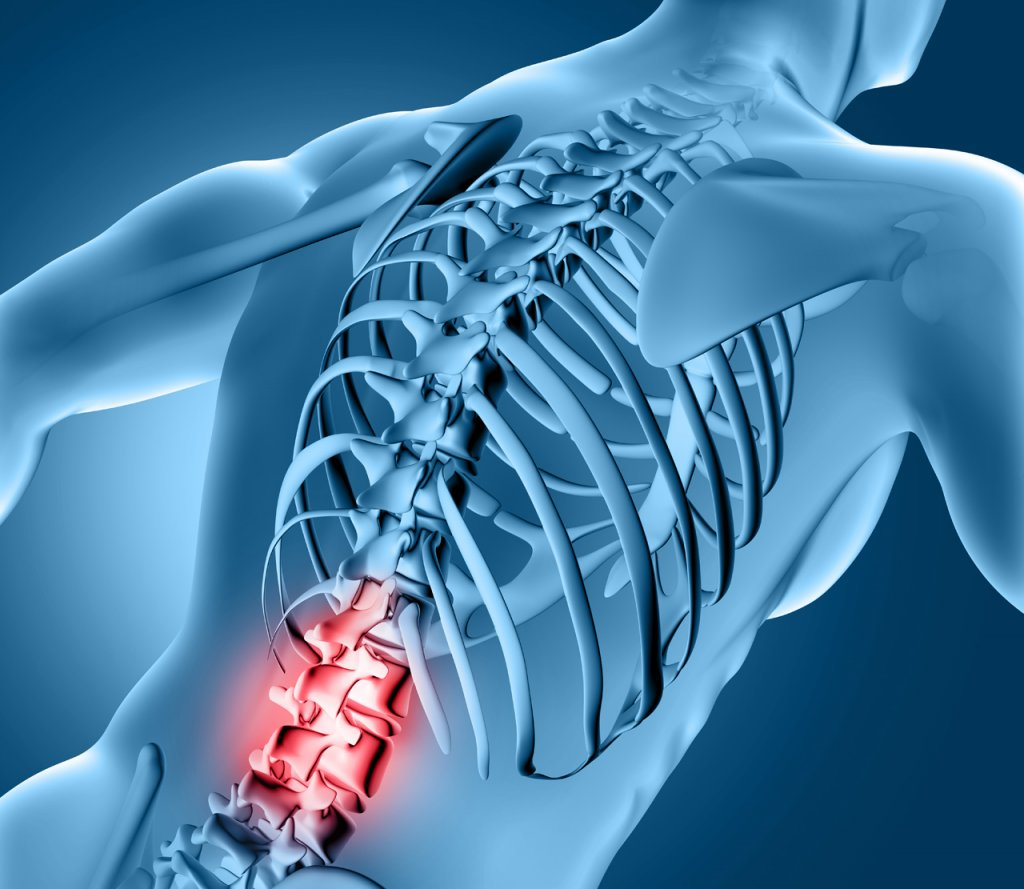 physical therapists, el paso, pain, chronic, reduce